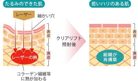 マリアクリニック安城・豊田の素肌入れ替えクリアリフトの仕組み